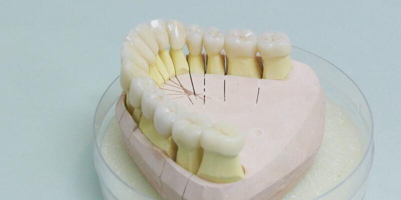 15-teilige Zahnbrücke