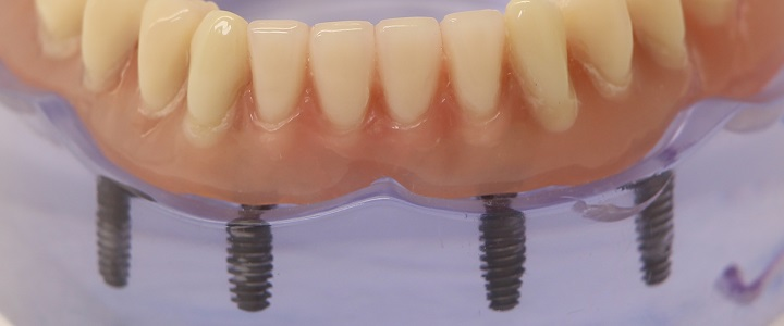 Vorteile von Zahnimplantaten