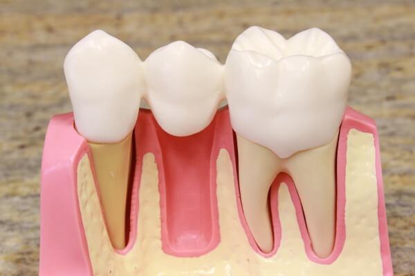 Vorteile von Zahnbrücken