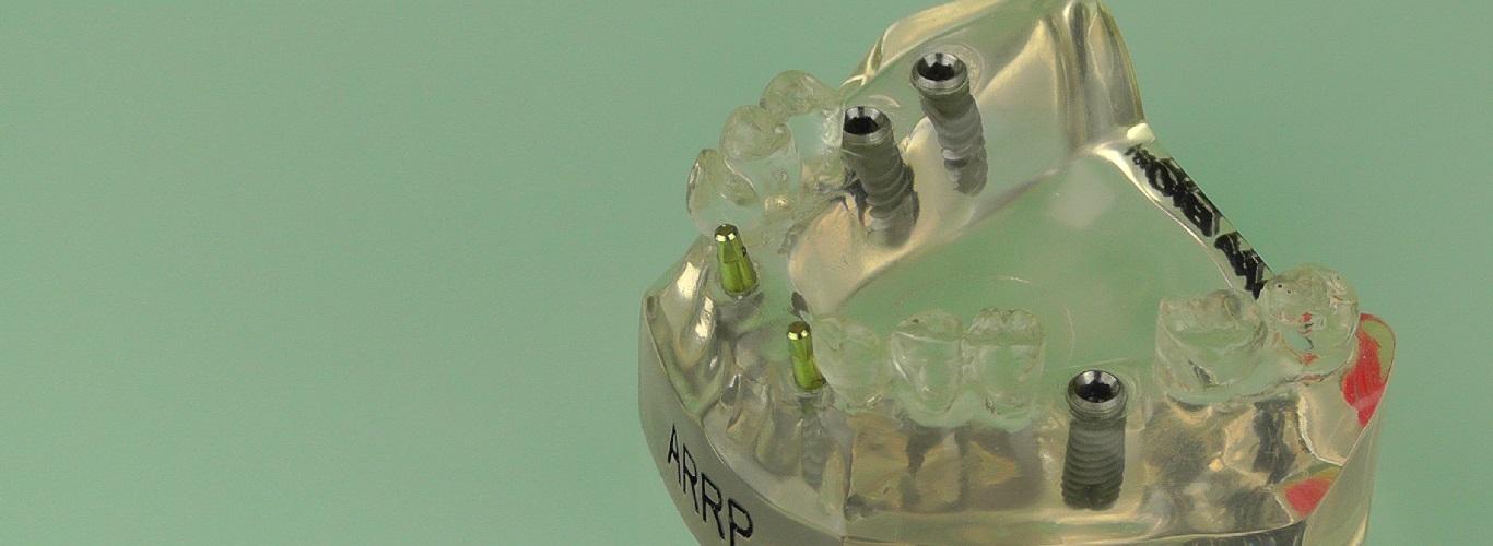 Zahnimplantat Dr. Implantat