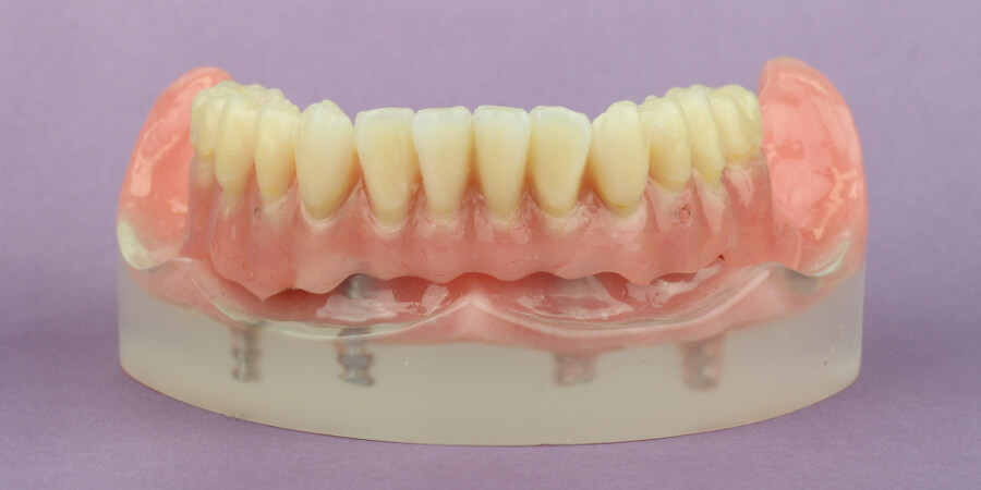 All-on-4 Zahnersatz auf 4 Zahnimplantate